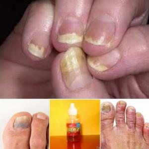 Дефармирани нокти напълно се възстановяват от био маслото